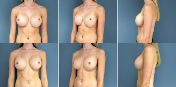 single model porn site