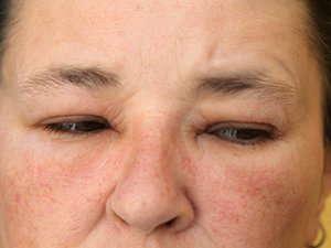 Close up image of swollen eyelids.