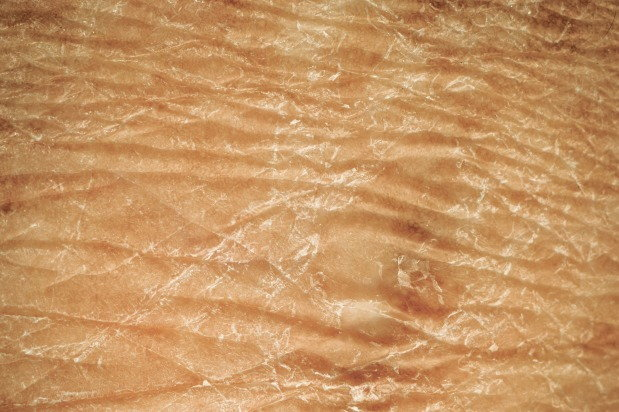 closeup of dry skin