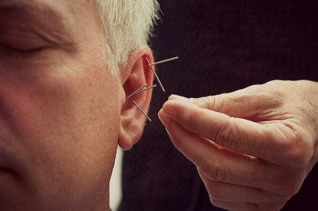 Man undergoes acupuncture treatment for his addiction