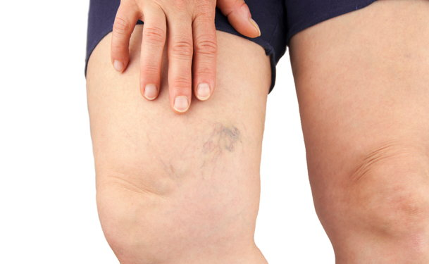 why do you get spider veins