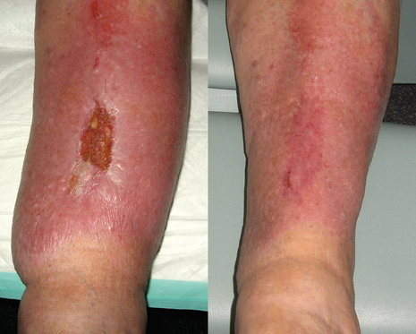 Wound Healing Before and After