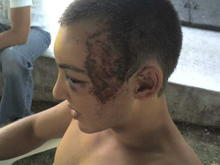 This is what happens when u dont wear a helmet
